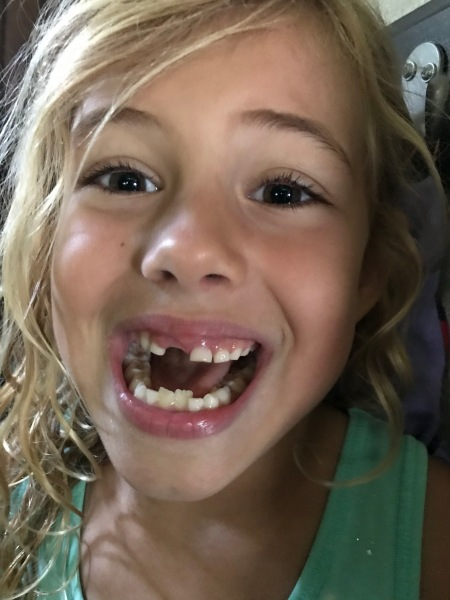 Lost tooth #3